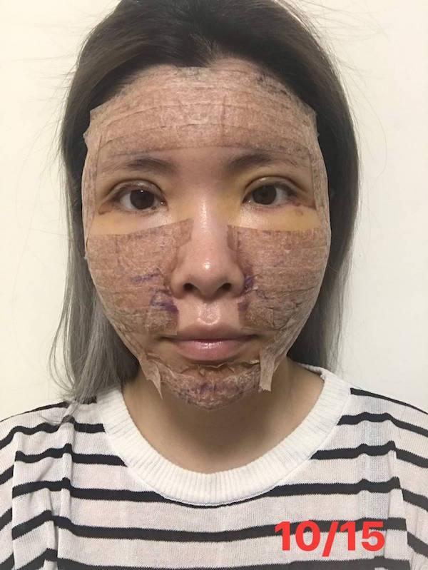 台北臻品絕色自體脂肪全臉補脂