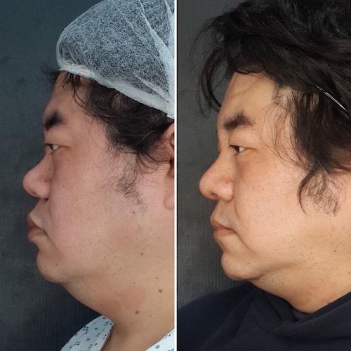 臻品絕色診所三段式隆鼻-混血美鼻,gortex隆鼻