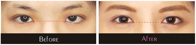 整形,臻品絕色診所,隆鼻,補脂,開眼頭