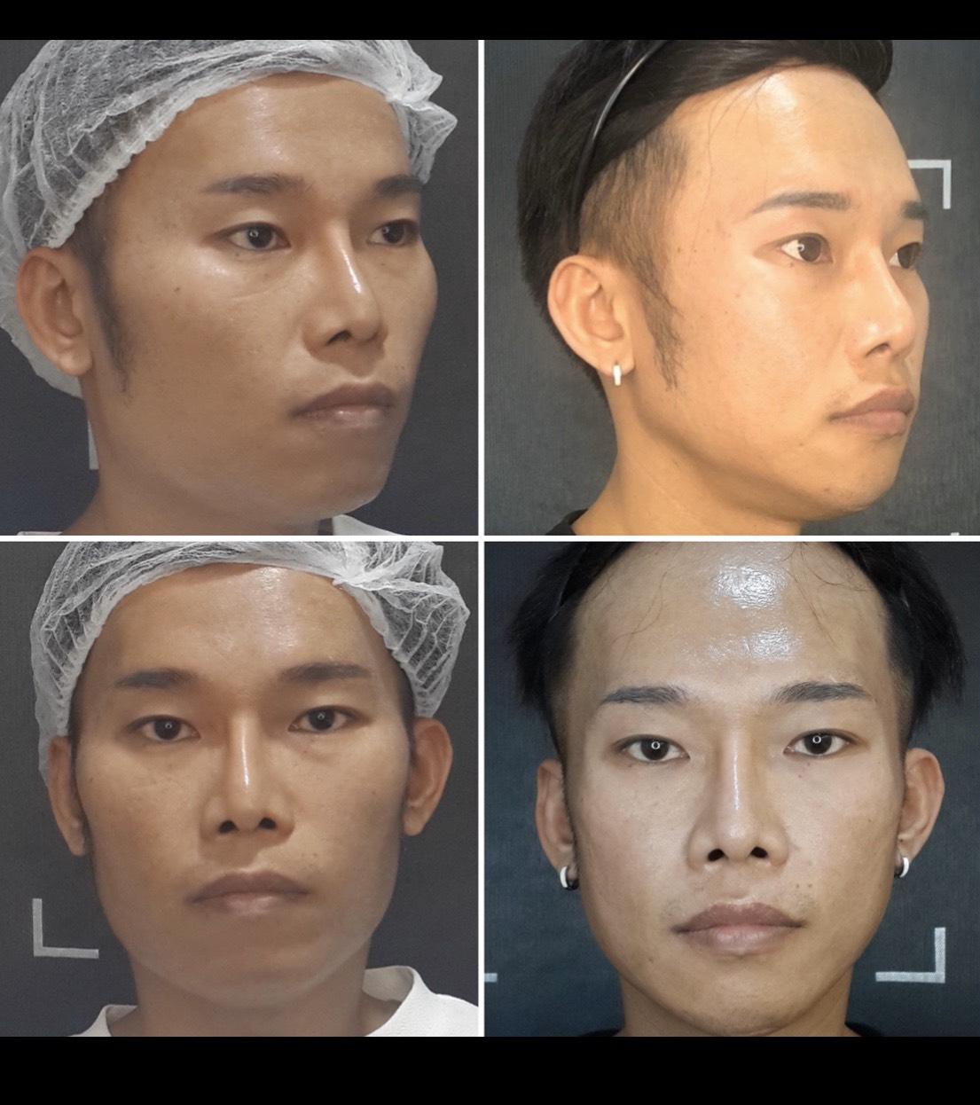台北臻品絕色,瘦臉削骨
