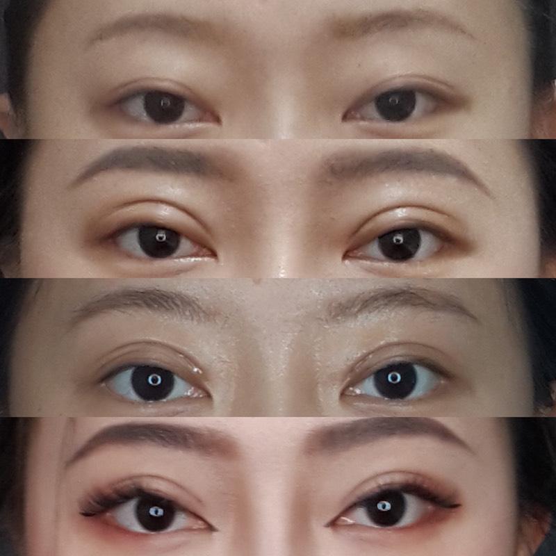 台北臻品絕色雙眼皮