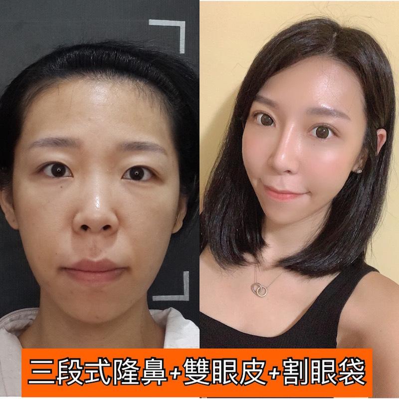 台北臻品絕色,雙眼皮,韓妞電眼,眼袋