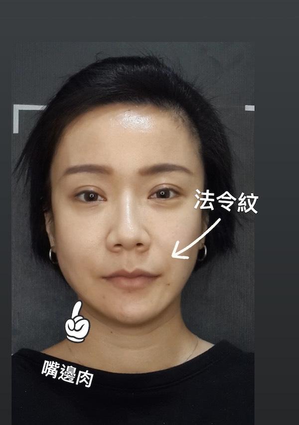 台北臻品絕色第三代海芙音波拉皮