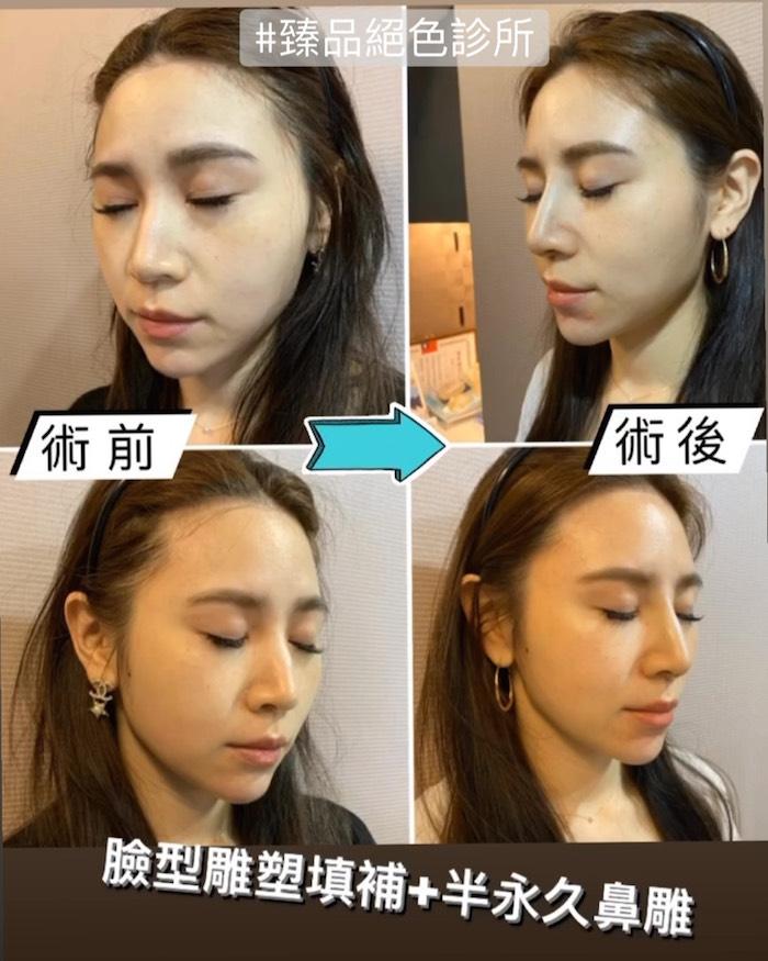台北臻品絕色,精靈針,艾麗斯aesthefill
