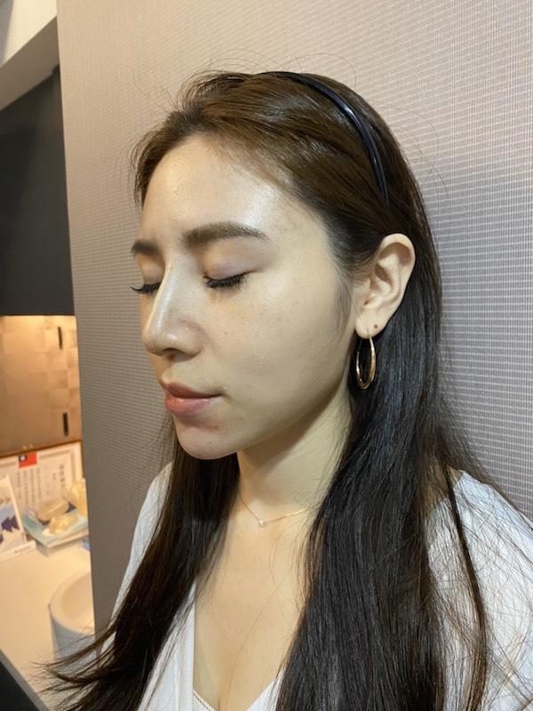 台北臻品絕色,鼻雕,Q鼻,埋線隆鼻