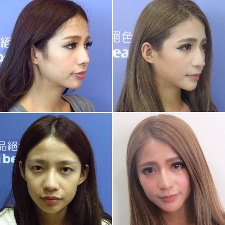 臻品絕色診所三段式隆鼻-混血美鼻,肋軟骨隆鼻