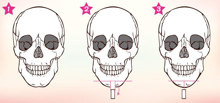 整形手術,臻品絕色診所,削骨