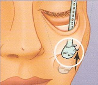 整形手術,臻品絕色診所,拉皮