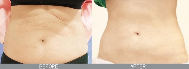 整形,臻品絕色診所,抽脂,松山醫美,融脂,自體脂肪