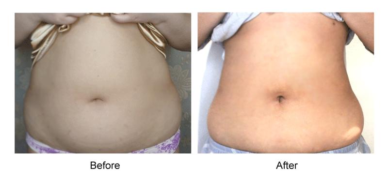 整形,臻品絕色診所,自體脂肪,抽脂,腹部,馬鞍