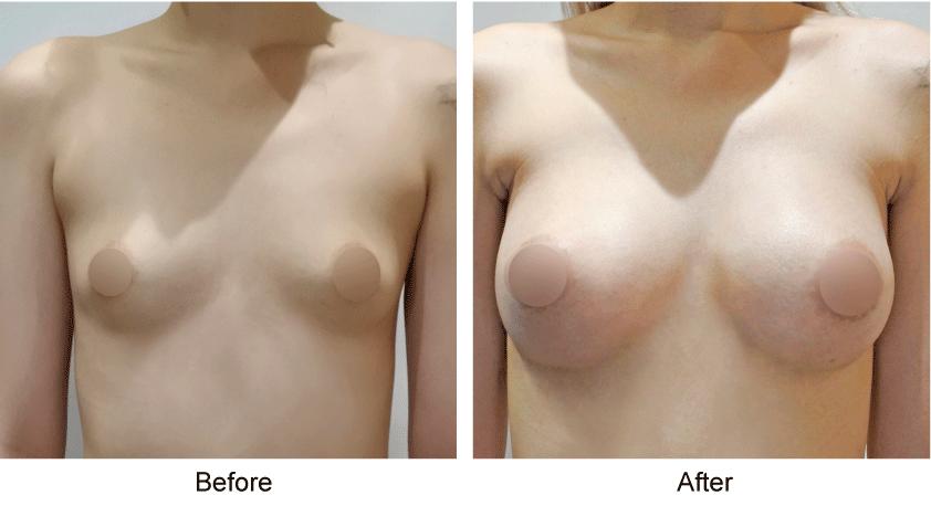 整形手術,臻品絕色診所,隆乳