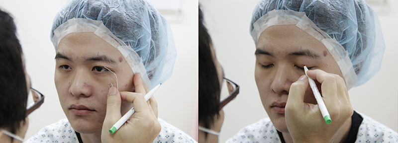 整形手術,臻品絕色診所,削骨,隆鼻,紀威帆