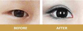 臻品絕色診所-雙眼皮 縫雙眼皮
