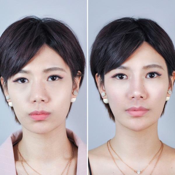 臻品絕色診所v18塑顏針愛瑪仕玻尿酸隆鼻-混血美鼻